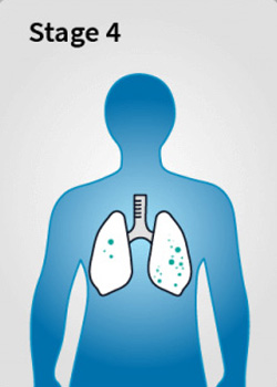 Mesothelioma Stage 4 - Stages of Mesothelioma Disease