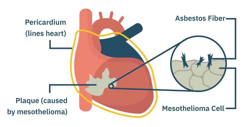 Pericardial Mesothelioma - Types of Mesothelioma