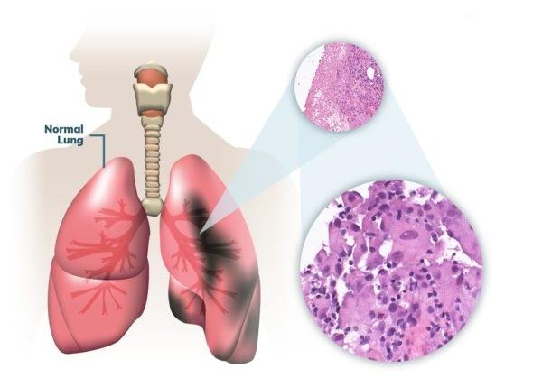 Pleural Mesothelioma - Types of Mesothelioma