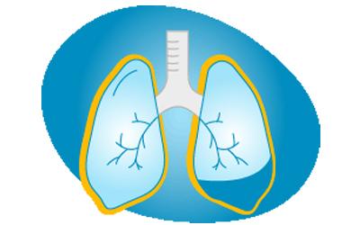 Pleural effusion - Symptoms of Mesothelioma Lung Cancer