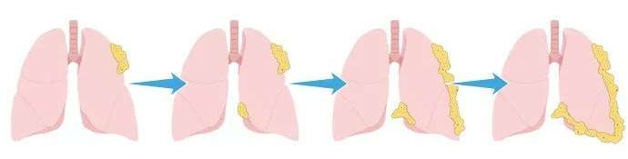 How Asbestos Lung Cancer Developed