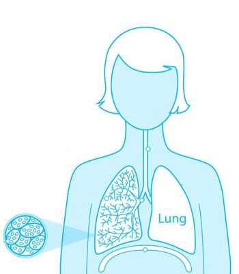 Pleural Effusions - Asbestos Lung Cancer